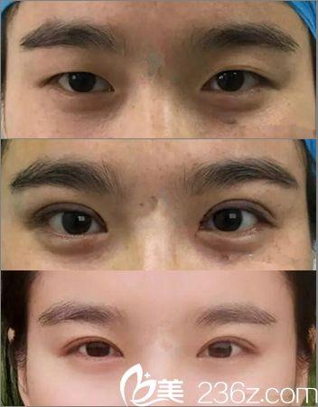 郑州眼部整形专家田国静双眼皮手术案例