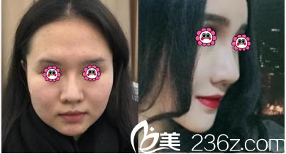 北京禾美嘉任学会面部吸脂案例