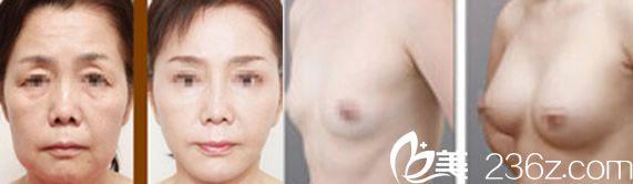 美诚均美干细胞祛皱治疗和干细胞隆胸案例效果图
