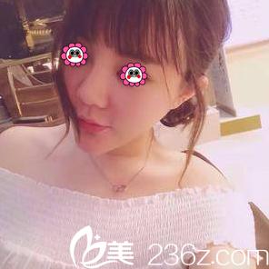 我在北京禾美嘉做面部吸脂前有看任学会和李伟民吸脂案例价格