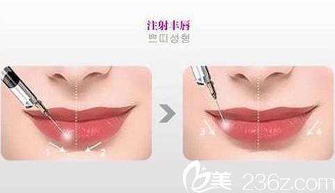 沈阳百嘉丽做的玻尿酸丰唇手术是否安全?要注意什么?