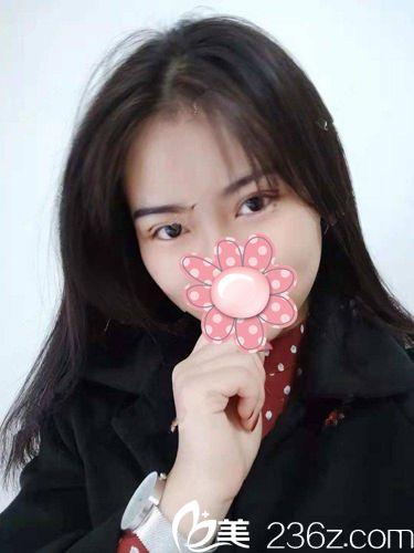 赞一个!在武汉美邺医疗美容做了微创双眼皮后7天就让我对美丽重新定义