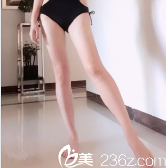 冲北京禾美嘉好口碑任学会技术我做腿部吸脂并得了份抽脂价目表