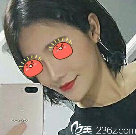 看杭州群英张华辉是从浙二医院过来坐诊的,就找他做了韩式生科假体+耳软骨鼻尖综合隆鼻