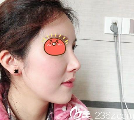 浙二医院整形科姜方震到杭州群英坐诊了,花2万找姜方震做了自体脂肪全脸填充