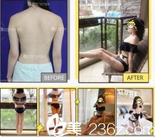 北京伟力嘉美信马永奇360°精细吸脂案例