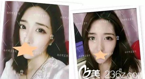 郑州明星整形双眼皮手术加开眼角手术案例