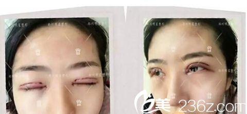 郑州明星整形顾客做了双眼皮术后即刻