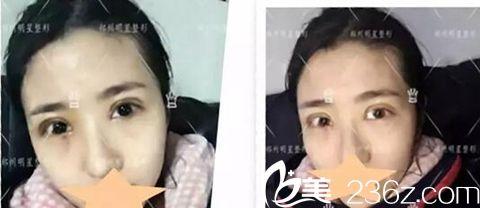 郑州明星整形顾客做了双眼皮手术拆线