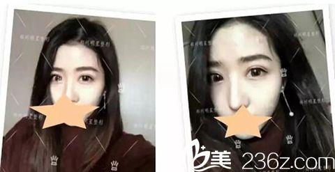 郑州明星整形顾客做了双眼皮手术加开眼角术后