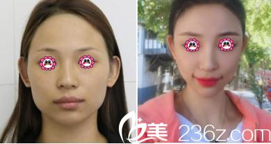北京金燕子自体脂肪面部填充案例