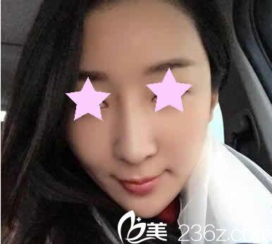 透露一下我在聊城韩美整形做全脸线雕提升前后对比照片和亲身经历