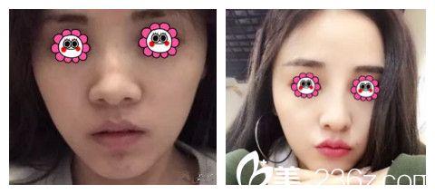 唐山金荣11月整形优惠还在继续中 柴庆勋教授做双眼皮只要580元