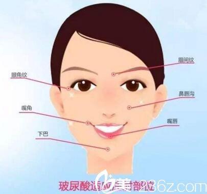 玻尿酸填充适应的面部部位
