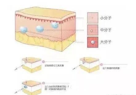 玻尿酸分子的大小之分及注射皮肤层的介绍
