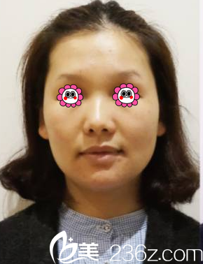 北京新美丽邦医疗美容诊所游小明术前照片1