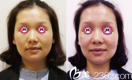 北京新美丽邦医疗美容诊所游小明术后照片1