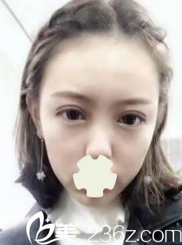 切开法双眼皮好不好?展示我在云南赫柏国际医美全切双眼皮的案例效果