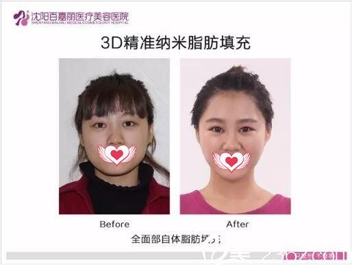 沈阳百嘉丽3D精准纳米脂肪填充真人案例展示