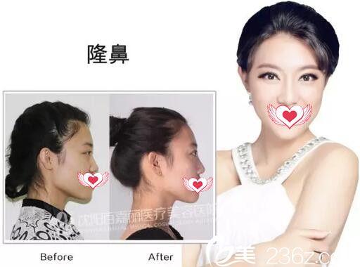 百嘉丽隆鼻技术真人效果对比