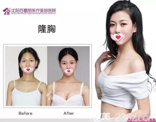 沈阳百嘉丽隆胸技术真人案例展示