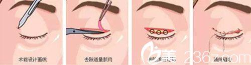 巧致整形医院做双眼皮手术过程