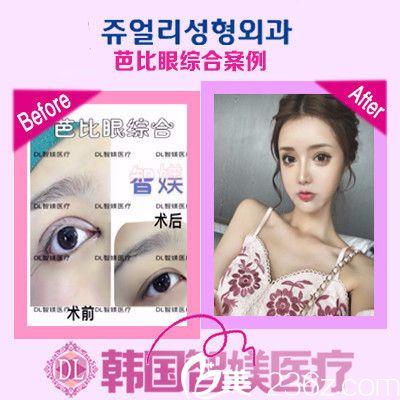广州智媄国际李阳医生网红双眼皮案例