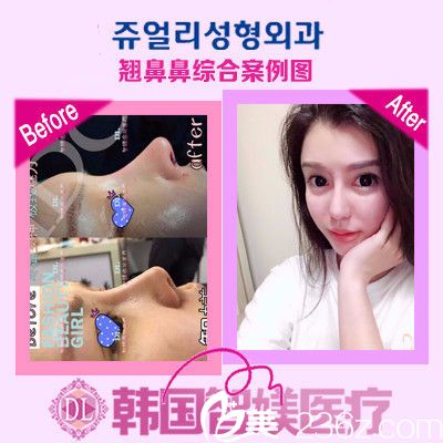 广州智媄黄红云医生鼻综合隆鼻案例