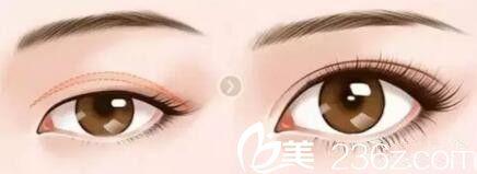 上眼睑提肌矫正术前术后效果对比