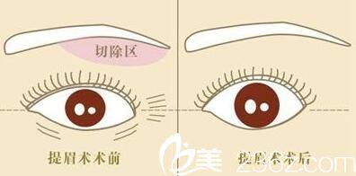 提眉术术前术后效果对比