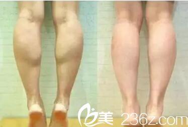 萝卜腿的我到南京春语注射瘦脸除皱一个月成功瘦腿分享护理要点