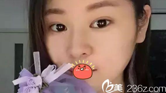 为了摆脱万年单眼皮眯眯眼和塌鼻梁短下巴,我到台州京蓉整形做了双眼皮和玻尿酸隆鼻丰下巴
