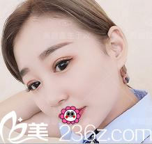 我在北京柏丽找于波做双眼皮修复有了解海医悦美双眼皮修复价格案例