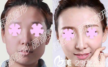 看下我在朔州丽都整形打瘦脸针+假体隆鼻前后对比照片,一周就变小V脸