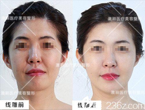 面部线雕案例