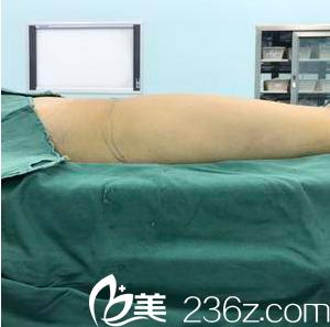 王光辉给我做腿部水动力吸脂当天