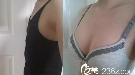 北京嘉和百旺安波假体隆胸案例