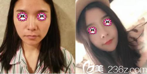 北京嘉和百旺张建宾自体脂肪面部填充案例