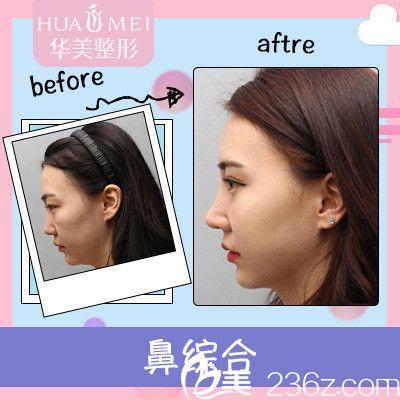 汕头华美张福奎主任做的鼻综合隆鼻案例