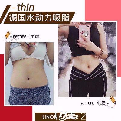 汕头华美杨善医生做的腰腹吸脂案例