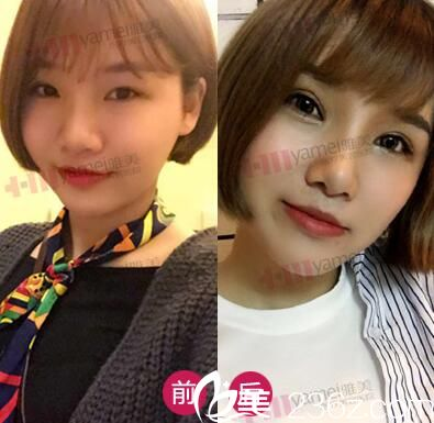 刘志刚医生双眼皮+鼻整形真人前后效果对比