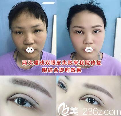 2次埋线双眼皮失败到阜阳皇宫雕美做眼综合修复术