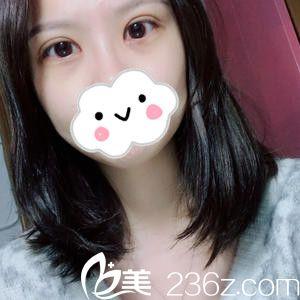 邱敏医生不愧是在武汉同济医院和上海九医院进修过的,双眼皮修复效果真的是超乎想象的好