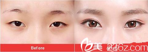 眼部整形前后对比效果