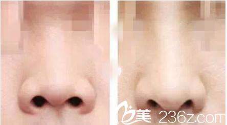 鼻部整形前后对比效果