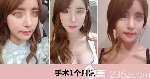 假体垫高鼻梁效果不满意,因此在韩国ID整形找金一焕做了鼻修复后变得挺拔小巧