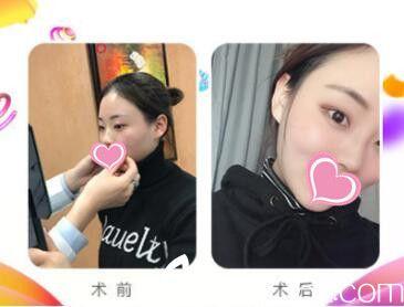 上海艺星瘦脸除皱注射真热案例