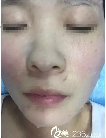 刚做完激光祛斑术后敷面膜