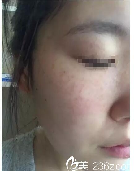 术后4天脸上开始结痂皮