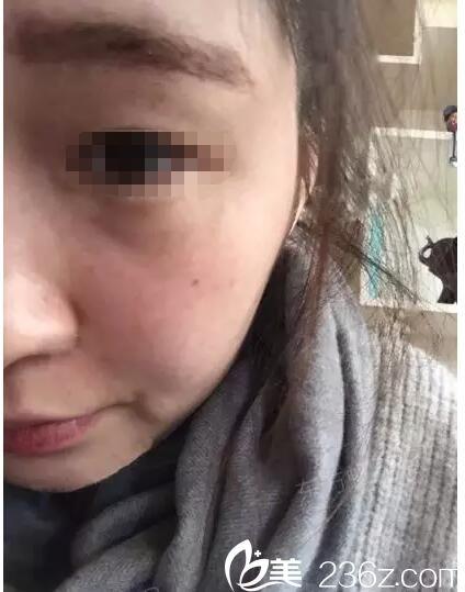 术后一周脸上斑点恢复